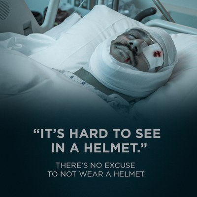 It's hard to see in a helmet. There is no excuse not to wear a helment.